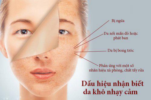 Cham Soc Da Nhay Cam Thien Kho 1 Copy