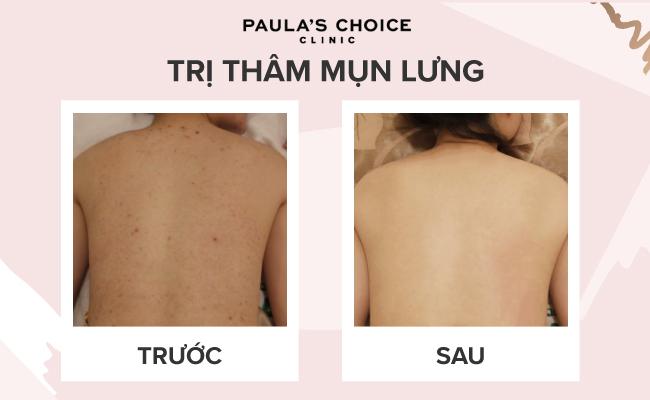 Cach Tri Tham Mun Lung (2)