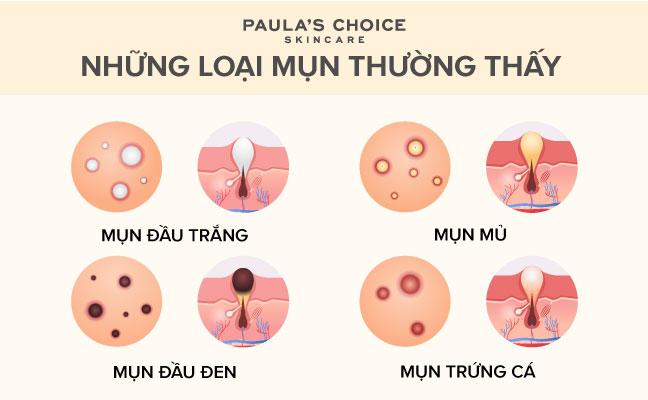Co Nen Lay Nhan Mun Khong (2)