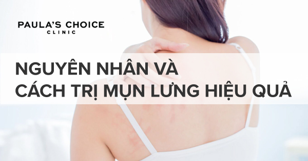 Nguyen Nhan Bi Mun Lung Va Cach Tri Mun Lung (4)